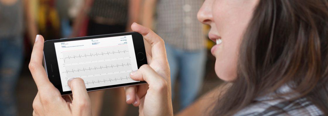 Coala+App+EKG